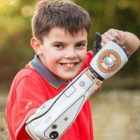 3D basılan protez kollar ABD'de satışa girdi