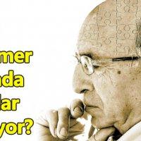 Alzheimer'ın medyadaki yeri?