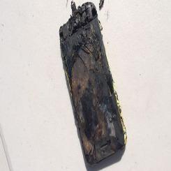 iPhone'u patlayan genç ölümden döndü